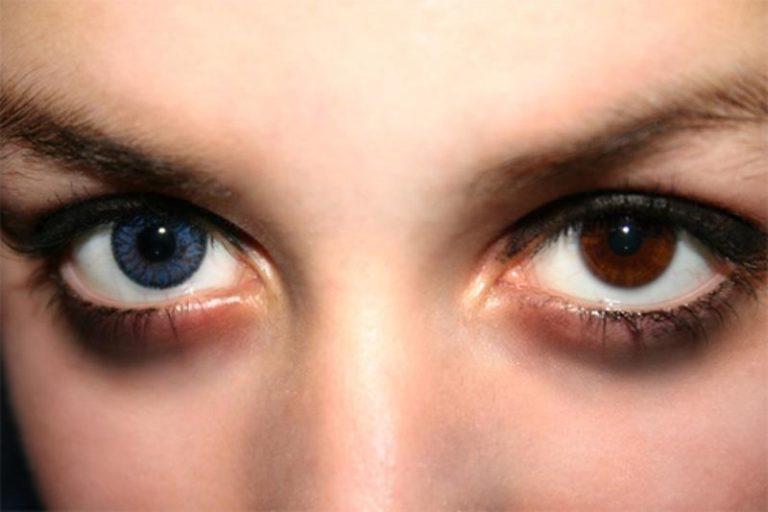 Как сделать разный цвет глаз